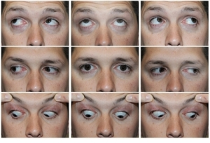 9points of gaze_normal_540