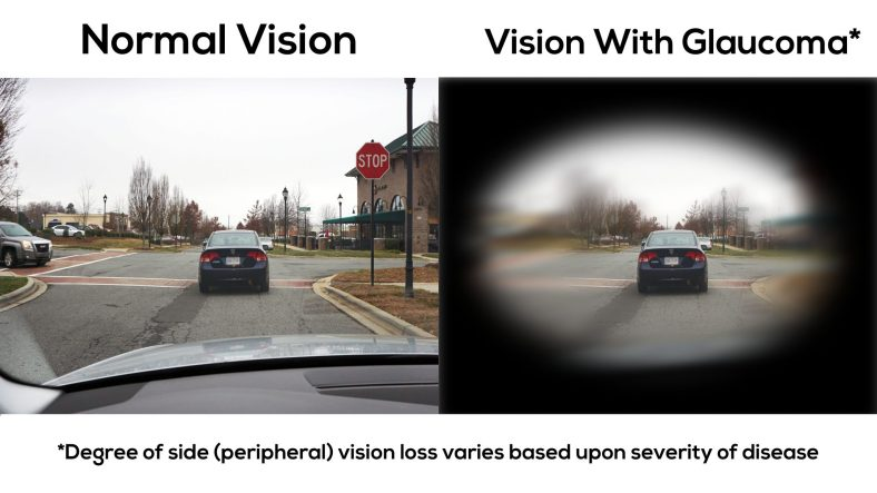 Vision-With-Glaucoma-2